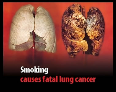 Smoking Effects On Lungs